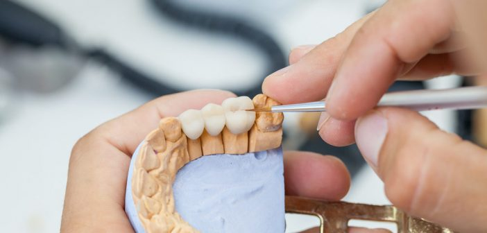 A quoi sert une prothèse dentaire ?
