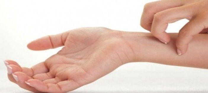 Par quels moyens pouvez-vous soulager les allergies alimentaires ?